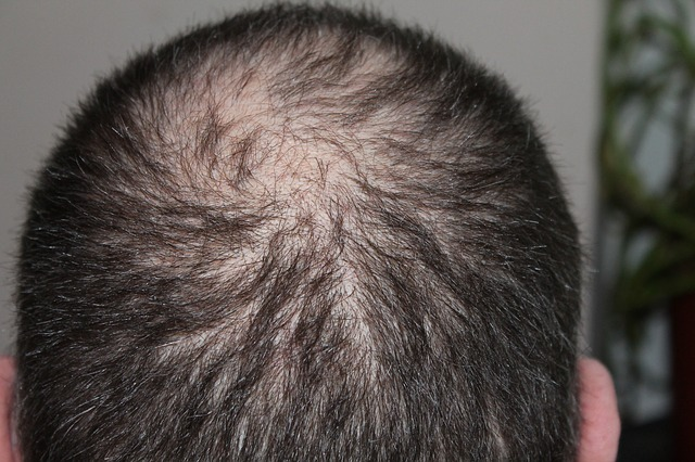 man with hairloss problems
